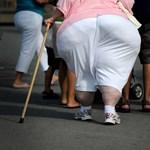 Újabb kapcsolatot fedeztek fel a rák és az elhízás között