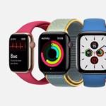 Nem kell szúrás: újabb módszerrel mérné a vércukorszintet az Apple
