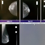Újfajta terápiával állítottak talpra egy haldokló mellrákos beteget Amerikában