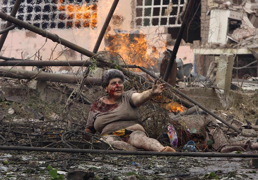 Sebesült grúz asszony fekszik a lakóháza előtt, miután az orosz hadsereg légicsapást mért Gori városára 2008. augusztus 9-én.