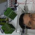 Agyi defibrillátort csináltak Szegeden, jó hír ez az epilepsziás betegeknek