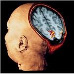 Miért okoz szédülést az MRI?