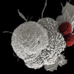 A felébresztett immunrendszer egyszerűen kisöpri a daganatot