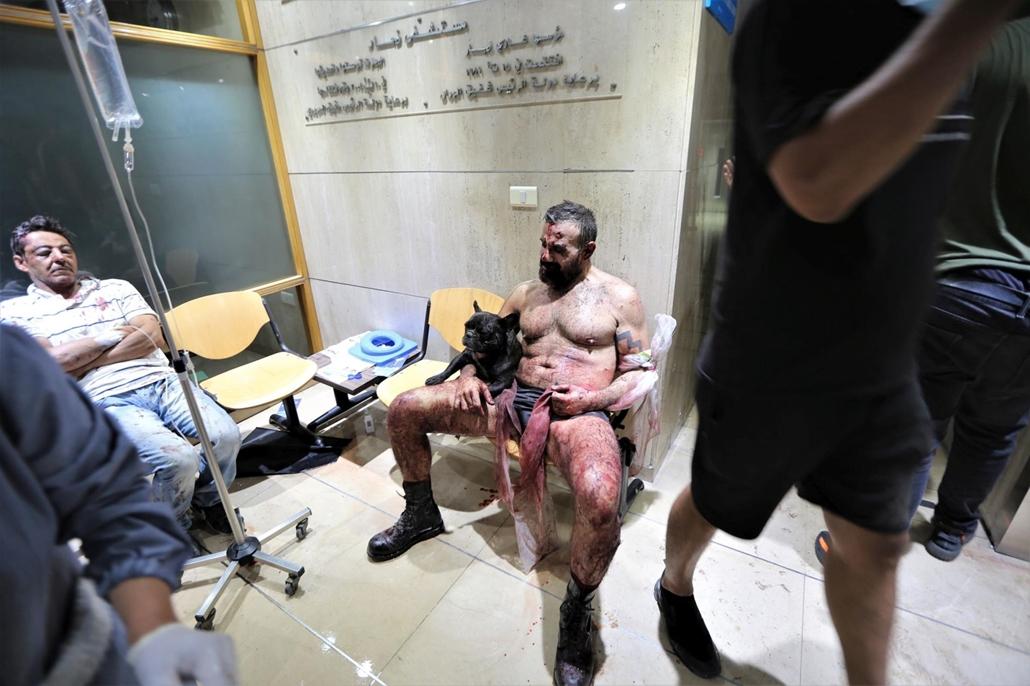mti.20.08.05. A bejrúti kikötőben történt hatalmas robbanás sebesültjei a libanoni főváros egyik kórházában 2020. augusztus 4-én. A detonáció következtében legkevesebb 78 ember életét vesztette, több mint négyezren megsebesültek. A robbanások okát nem tud