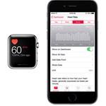 Kiderült: ennyire lehet bízni az Apple Watch szívritmus-érzékelőjében