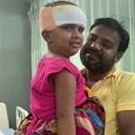 Jó hír érkezett a bangladesi ikerlányokról