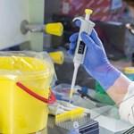 Rengeteg tesztre lenne szükség a járvány megállításához a WHO szerint