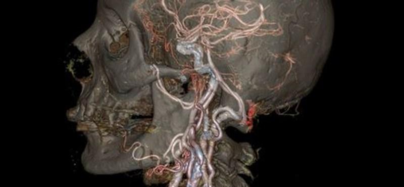 Hihetetlen képek: így még nem láthattuk belülről az emberi testet