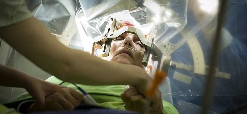 Fotók: ébren volt a beteg, amikor műtötték az agyát