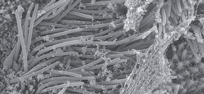 CT-felvételekből azonosítja a koronavírust az újfajta mesterséges intelligencia