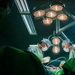 Fejüknél összenőtt sziámi ikreket választottak szét egy londoni kórházban