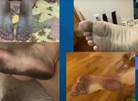 Fekete lett a strandolók lába Amerikában, de nem a homok és nem is a víz miatt