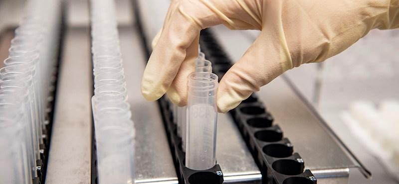 Újabb 876 fertőzöttet regisztráltak, elhunyt három beteg