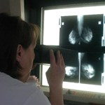 Elromlott mammográfiás készülék, hónapos várólisták, magyar egészségügy 2017