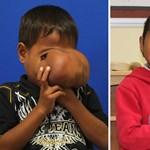 Kókusz nagyságú kinövést távolítottak el egy kisfiú arcáról