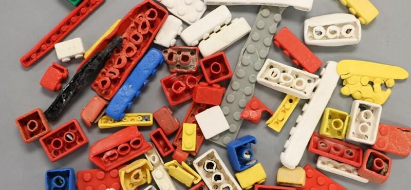 Két évig volt egy Lego-darab egy kisfiú orrában, mire kijött onnan