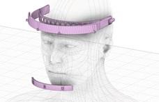Magyar startuppal együtt talált ki arcvédőket egy budapesti kórház