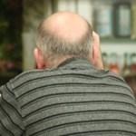 Megfejtették a férfiak kopaszodásának biológiai okát