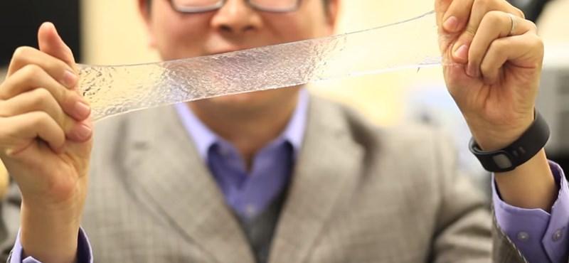A jövőben ilyen eszközt raknak arra, aki megsérül: az MIT megint magasra tette a lécet