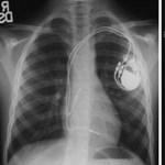 Semmelweis Egyetem: 1200 magyar szívben van visszahívott pacemaker