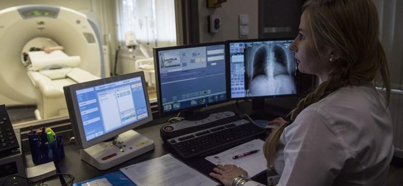 Científicos húngaros: la esperanza de vida de los pacientes con cáncer de pulmón se puede aumentar de 8 meses a 62 meses