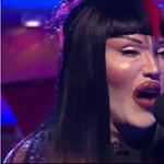 Meghalt Pete Burns, az agyonműtött arcú énekes