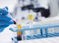 Az ELTE kutatói beszálltak a rákos áttétekkel vívott harcba