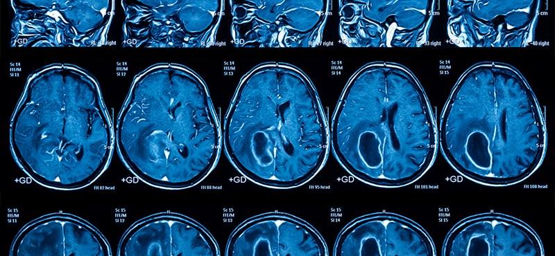 Egy lépés előre: tovább élhet, aki kemoterápia helyett lézerkezelést kér a leggyakoribb agydaganat ellen
