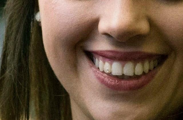 orbán ráhel foga fogékszerv fogpiercing