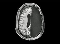 Gyerekkorukban kiműtötték az agyuk felét, csodálatosan reagált a szervezetük