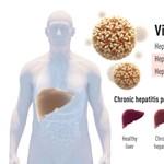 A hepatitis C-vírus felfedezéséért kapták az orvosi Nobel-díjat