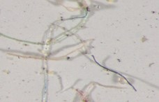 Mosás közben felszabaduló mikroszálakkal van tele az északi-sarkvidék
