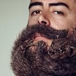 Jogosan bocsátott el hosszú szakálla miatt egy orvost egy francia kórház