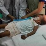 Magyarországi kezelésre érkezik egy bangladesi sziámi ikerpár