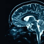 Az agya tehet arról, ha szereti halogatni a dolgokat