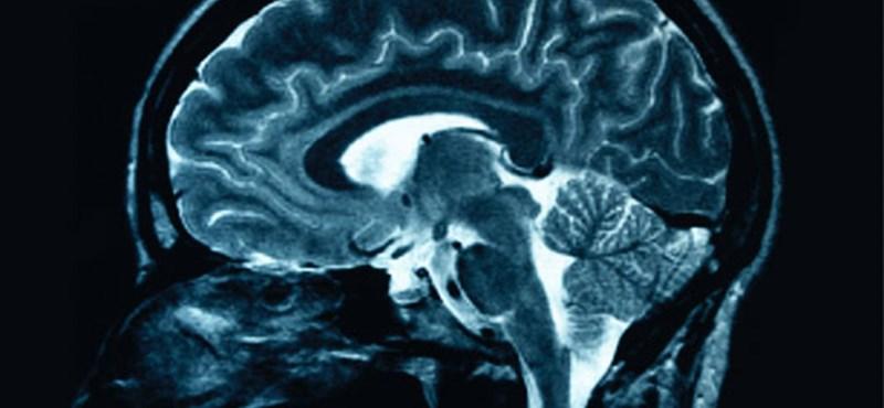 Megelőzhető az Alzheimer-kór