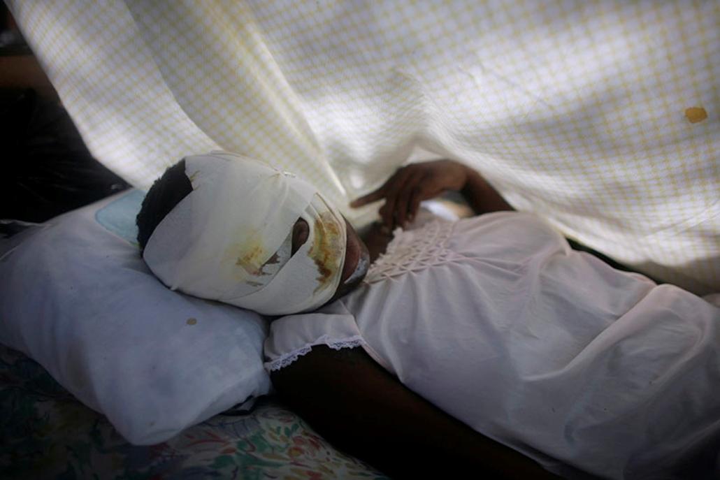 Sebesült nő fekszik egy port-au-prince-i kórházban 2010. január 16-án.