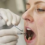 Italok, amelyek visszafordíthatatlan károkat okoznak a fogakban