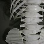 Túl sok kalcium nem teszi erősebbé a csontokat