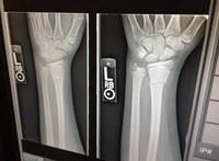 Feleannyi műtéttel lehet helyrehozni a gyerekek törött csontjait egy új technológiával