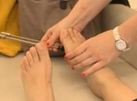 Naponta 10 ember lábát amputálják cukorbetegség miatt