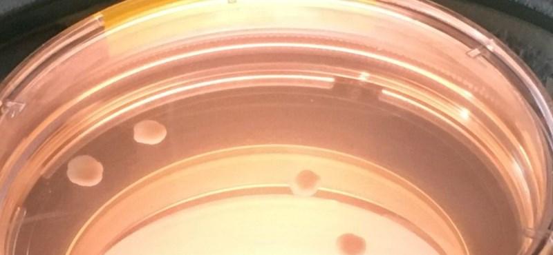 Íme a négy hónapon át laborban növesztett emberi miniagy első eredményei