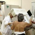 Hajmeresztő egészségügyi tévhitek a rákkal kapcsolatban