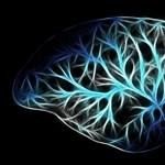 Újfajta módon vizsgálták az agysejteket a szegedi kutatók, az Alzheimer-kórt is hatékonyabban kezelhetik majd