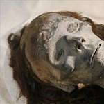 Sarlósejtes vérszegénységben hunyt volna el Tutanhamon?