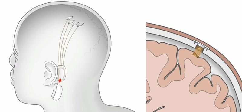 Megvalósulhat Elon Musk álma: még az idén chipet ültethet a Neuralink az emberi agyba