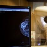 Egy új kutatás szerint kemoterápia nélkül gyógyulhat a mellrákos esetek jó része
