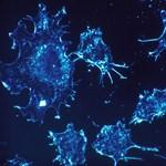 Négy transzplantált beteg lett rákos ugyanattól a szervdonortól